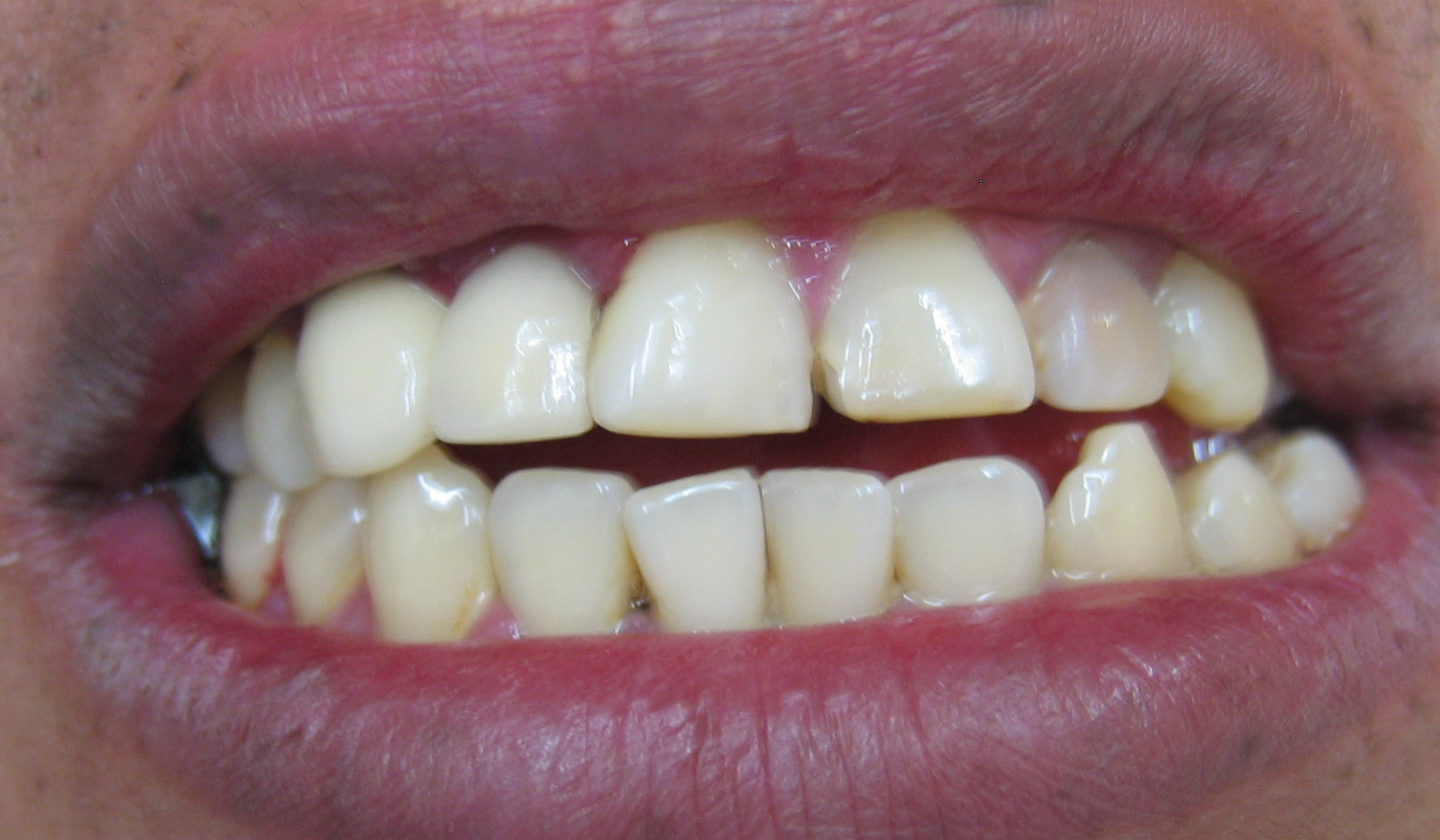 Deciding on Dental Veneers - Addicted To All Things Pretty
